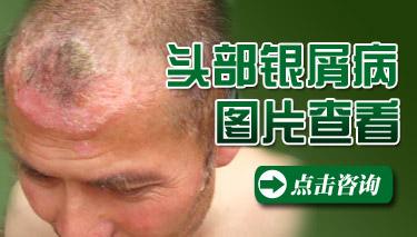 头部患牛皮癣会导致脱发
