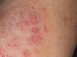 牛皮癣患者要提高自身免疫力