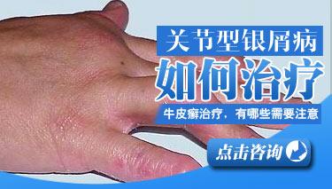 如何治愈关节型银屑病