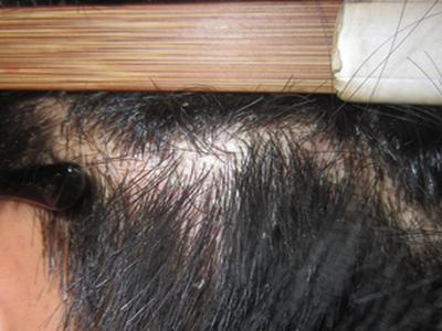 牛皮癣病情严重复发,请问应如何治疗