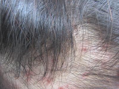 牛皮癣的典型症状是什么