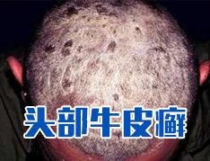 牛皮癣头部护理注意事项