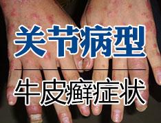 关节型银屑病的损害有哪些