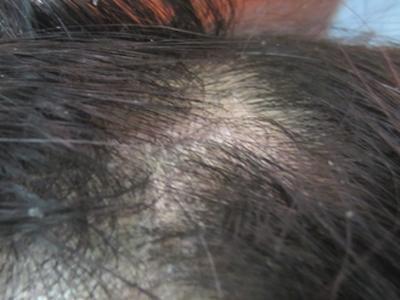 脓疱型牛皮癣对人体有什么危害
