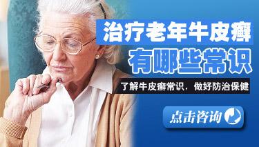 怎么治疗老年牛皮癣